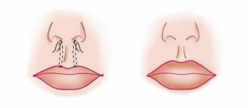схема операции пластики губ