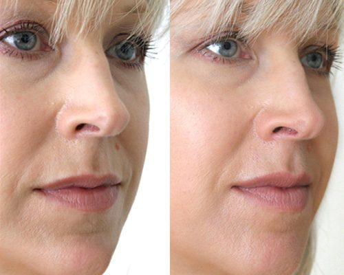 фото до и после химического пилинга