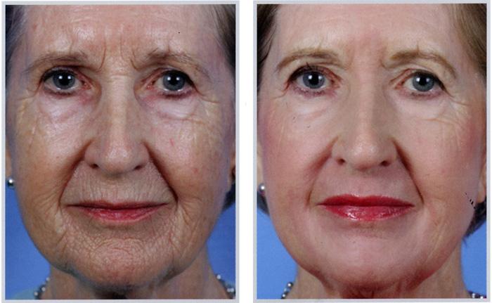 фото до и после лазерного омоложения