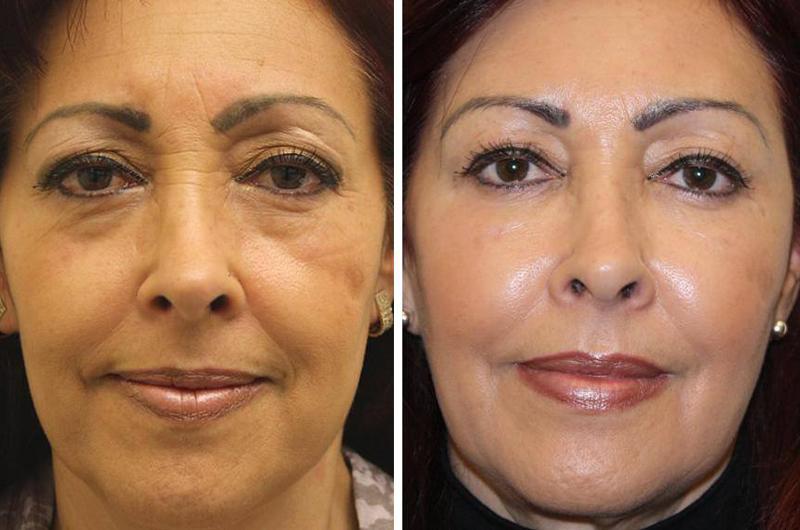 фото женщины до и после