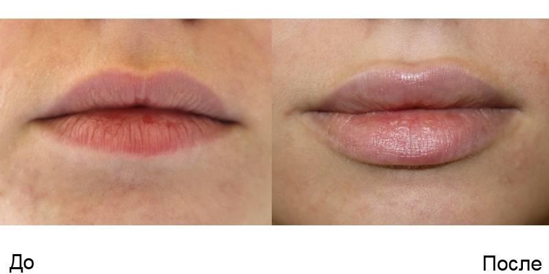 губы до и после увеличения