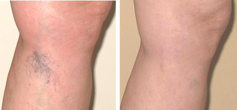 фото до и после склеротерапии