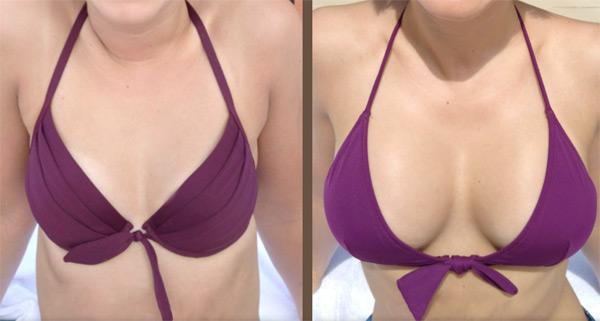 увеличение груди анатомическим имплантами фото до и после