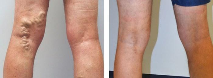 фото до и после флебэктомии