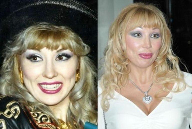 Маша Распутина до и после операции