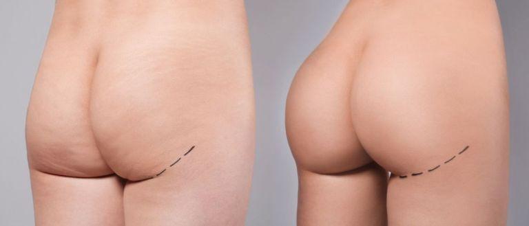 Фото до и после внедрения имплантов в ягодицы