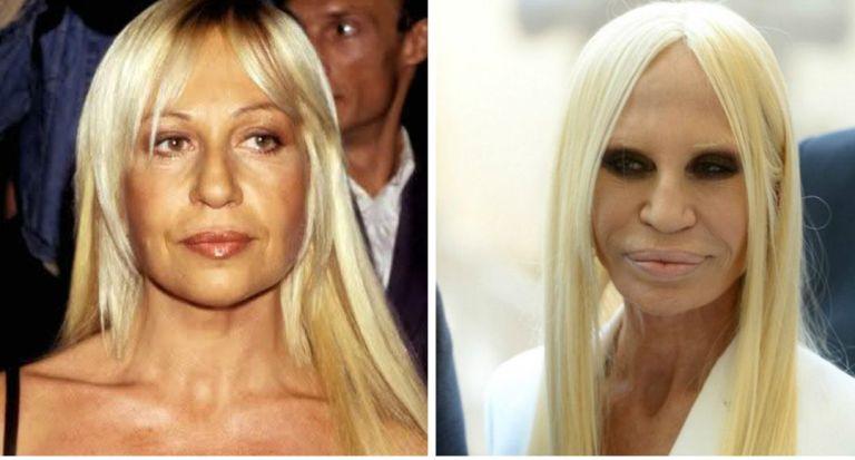 Донателла Версаче до и после операции