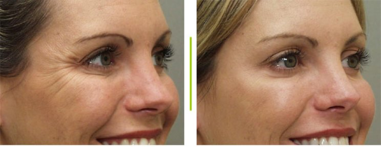 фото до и после ботокса для глаз