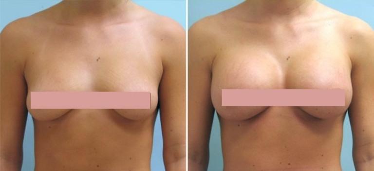 Фото до и после липофилинга грудных желез