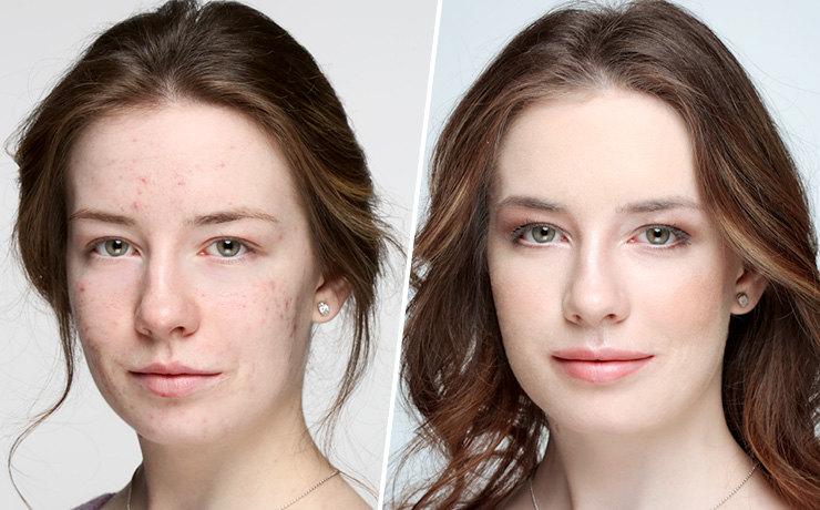 фото до и после безинъекционной биоревитализации