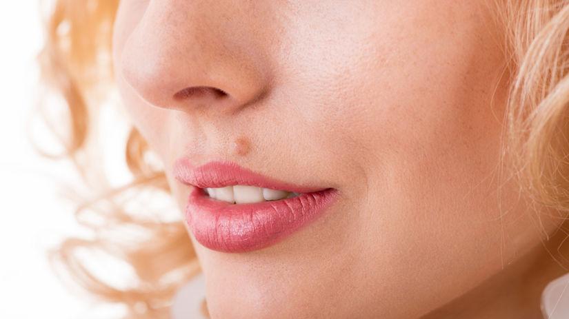 пигментный невус над губой