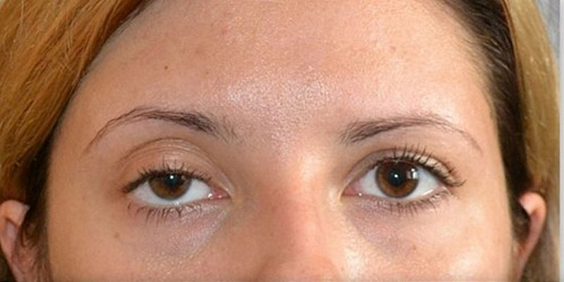 Нависло веко после ботокса вокруг глаз