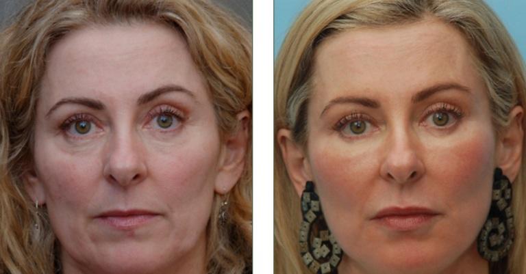Фото до и после электропорации лица