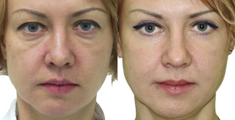 круговая блефаропластика: фото до и после