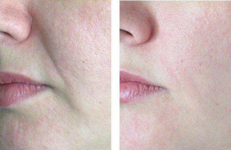 Фото до и после введения филлера в носогубные складки