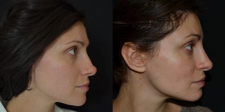 До и после ринопластики кончика носа