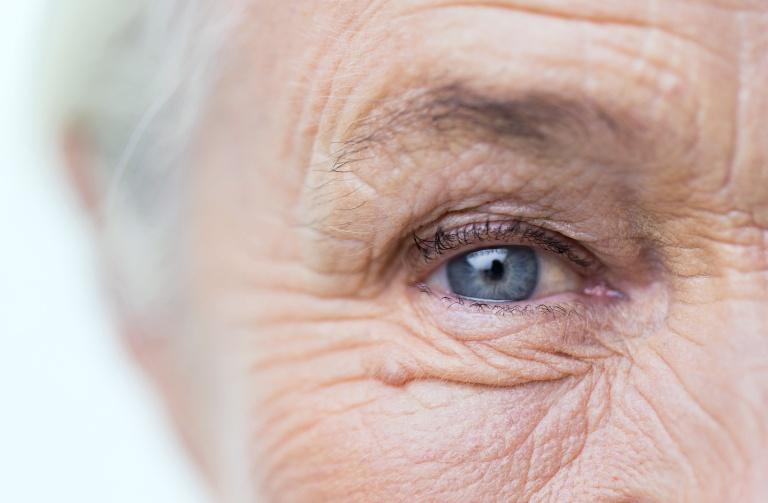 Морщины в области глаза