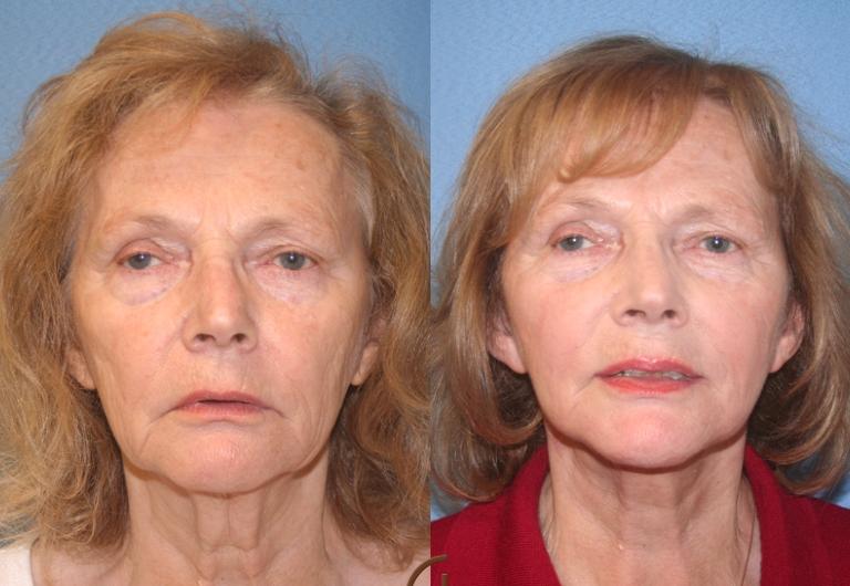 Фото до и после РФ лифтинга лица