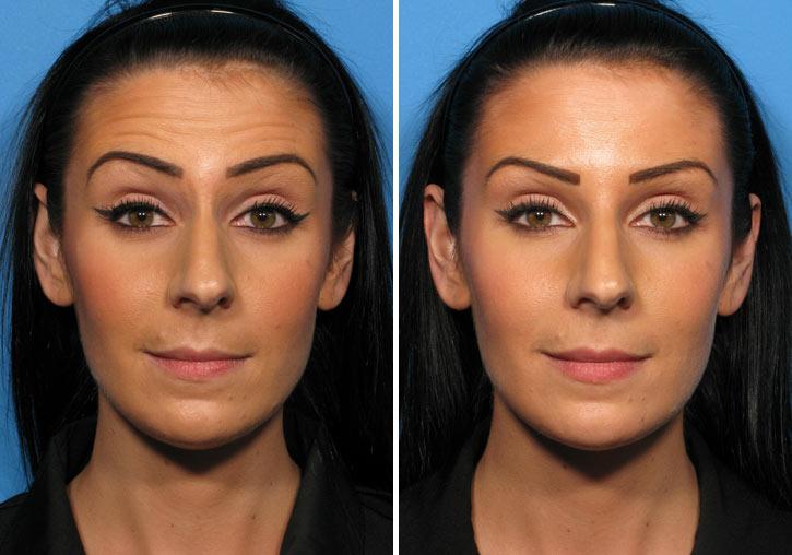Ботокс в лоб: фото до и после