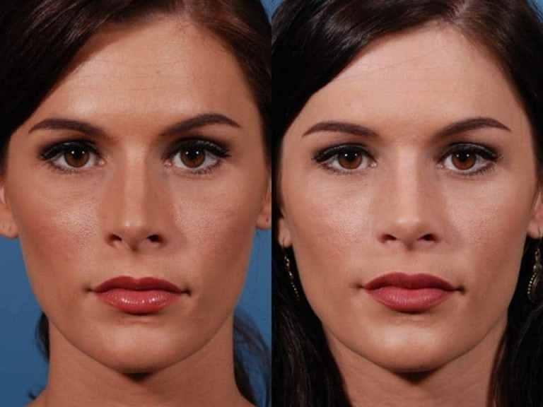 Липолитики для лица: фото до и после