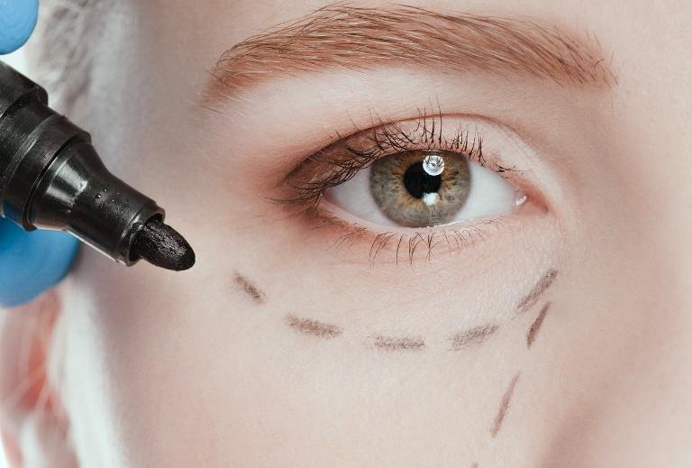 пунктир возле глаза