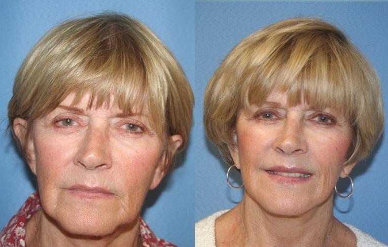 Миостимуляция лица: фото до и после