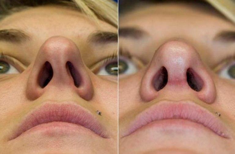 Смещение носовой перегородки