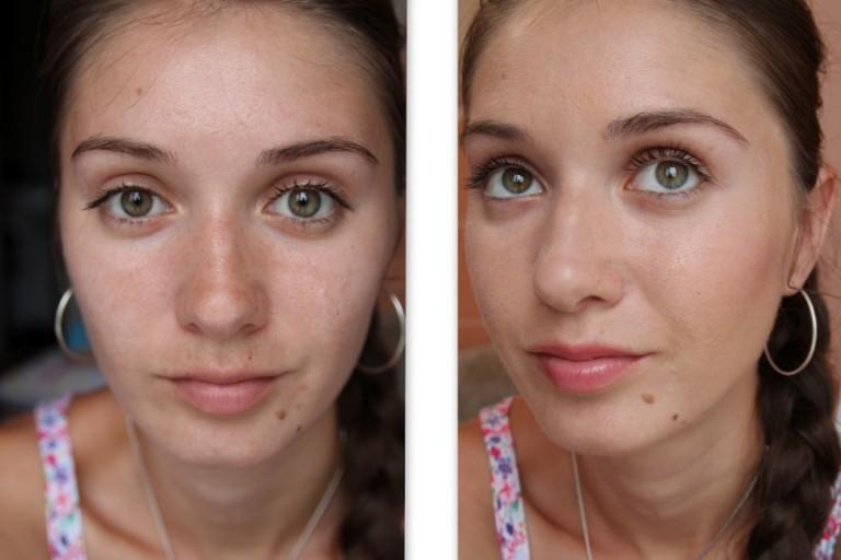 Домашний миостимулятор для лица: фото до и после