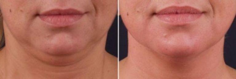 Липолитики для лица: фото до и после процедуры