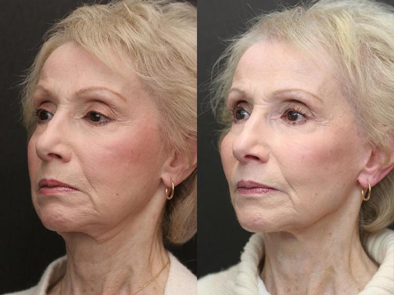 Фото до и после неинвазивного липолиза на подбородке