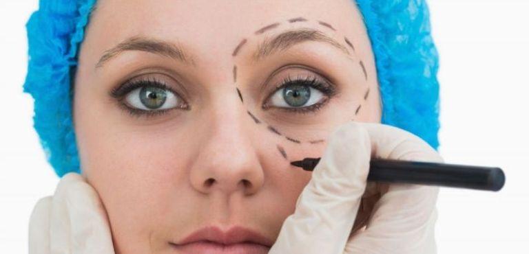 Хирург рисует разметку в области глаз