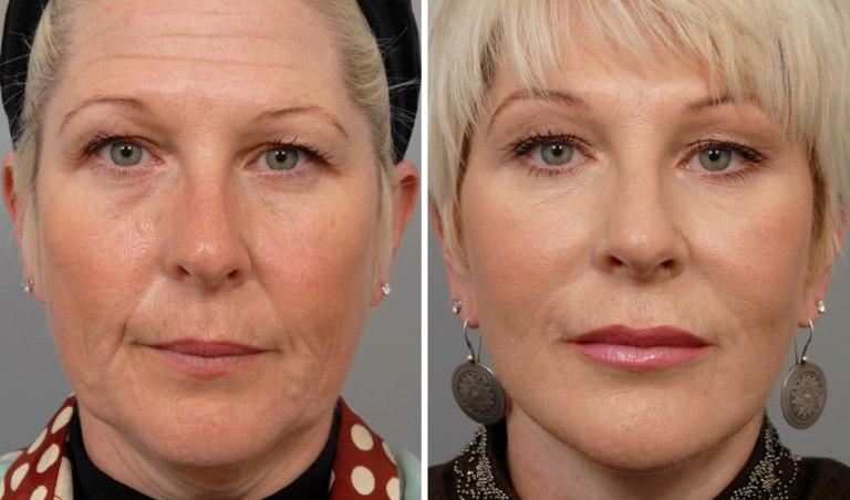 Что такое мезотерапия: фото до и после
