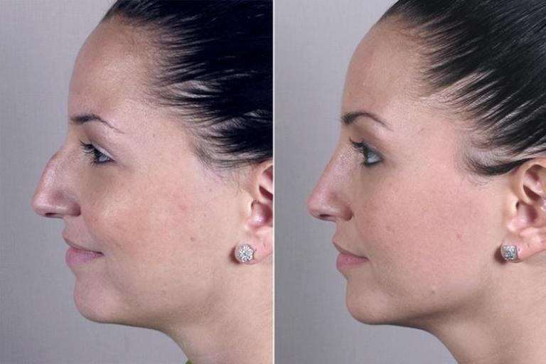 Ринопластика: фото до и после