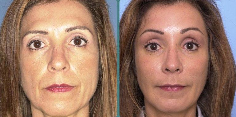 Фото до и после процедуры SMAS-лифтинг