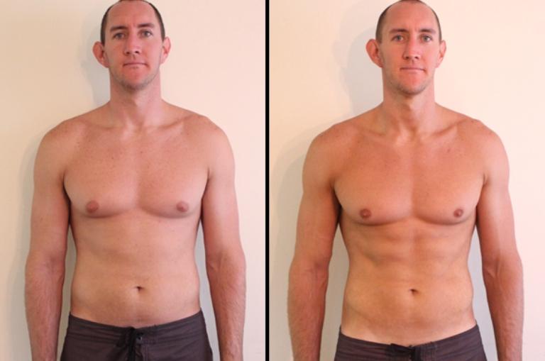 Криолиполиз фото до и после