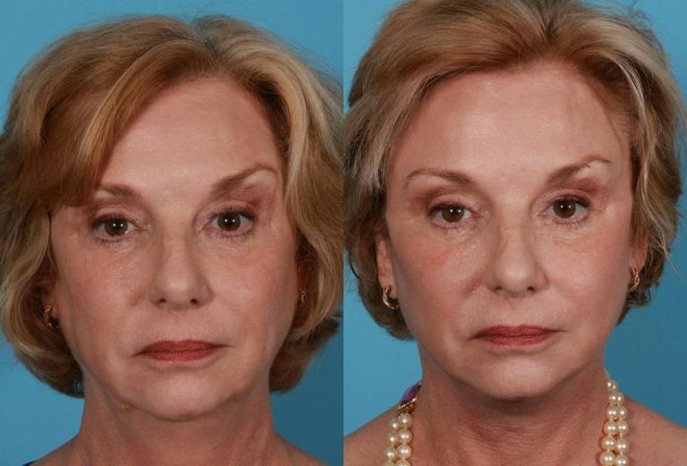 РФ лифтинг лица: фото до и после