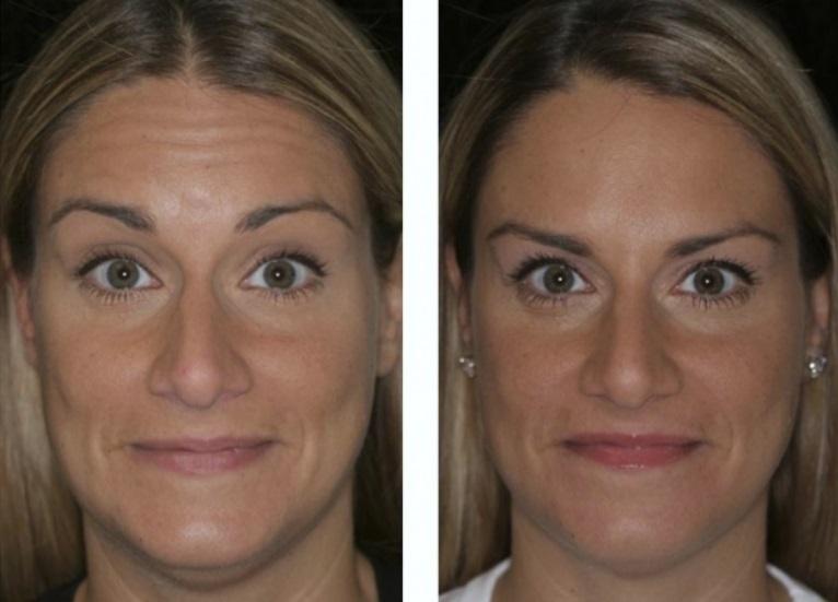 Фото до и после ботокса в лоб
