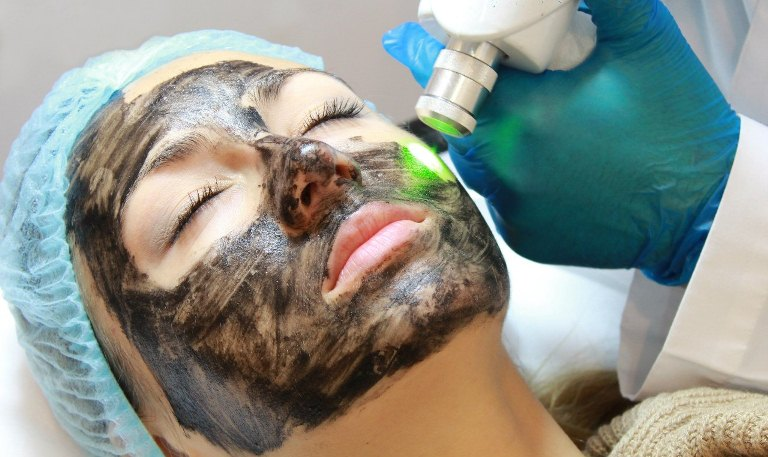 Косметолог проводит карбоновый пилинг