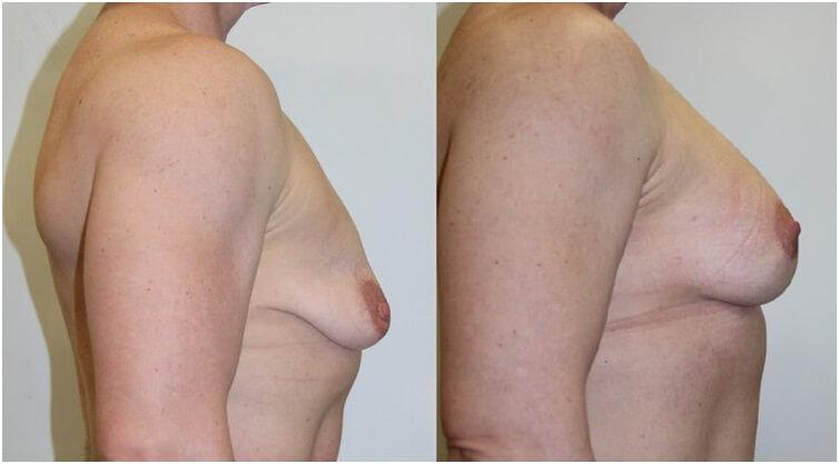 Фото до и после подтяжки грудных желез