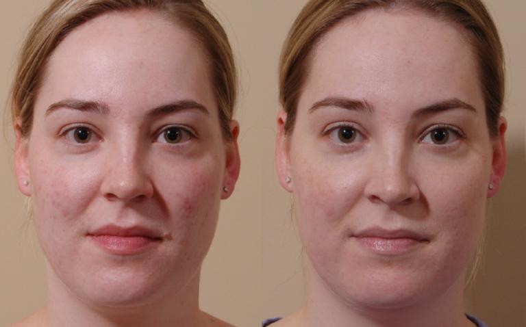 Фото до и после карбонового пилинга