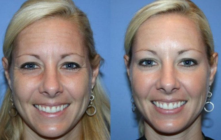 Фото до и после Ксеомина