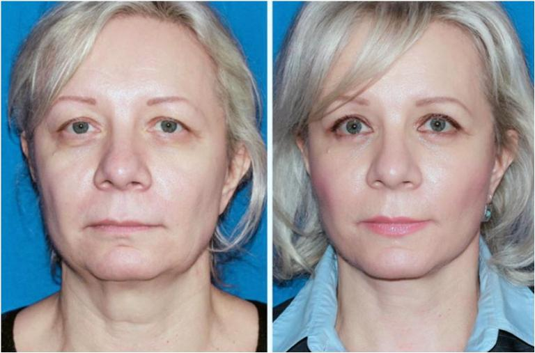 До и после подтяжки лица мезонитями