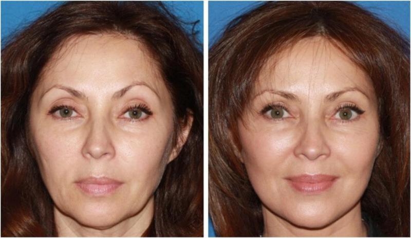 Фото до и после подтяжки лица нитями