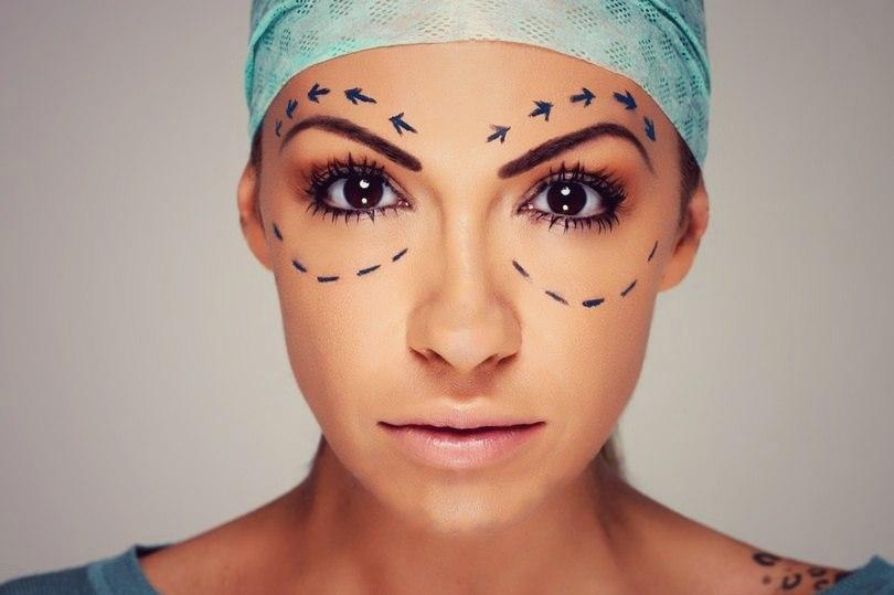 Разметка на лице перед блефаропластикой