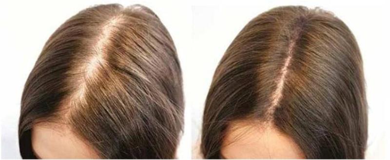 До и после плазмолифтинга для волос