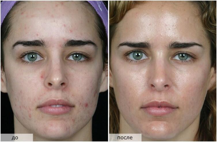 Фото до и после озонотерапии для лица