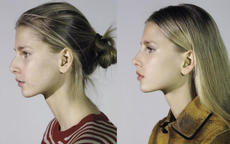 Фото до и после ринопластики в СПБ