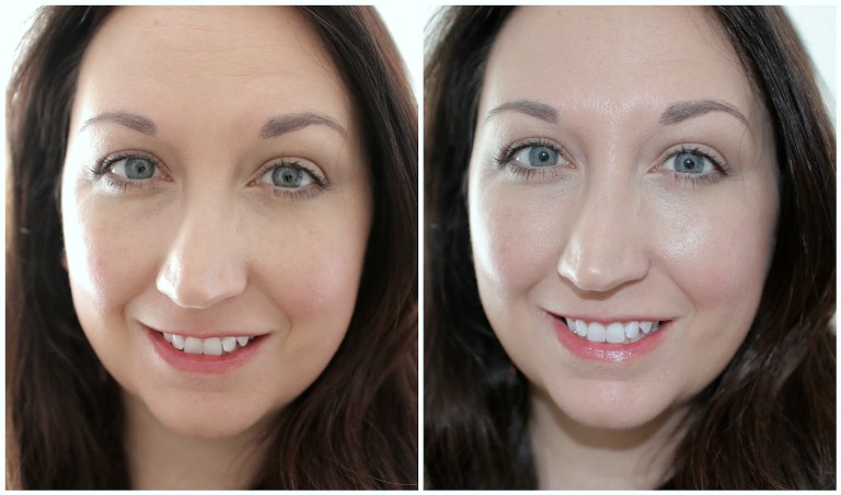 Фото до и после Солгар гиалуроновая кислота