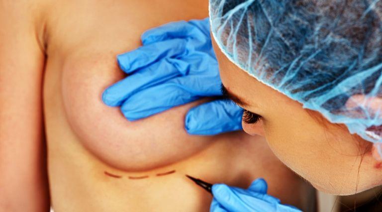 Подготовка к операции на груди