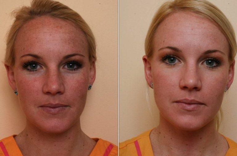 До и после энзимного пилинга